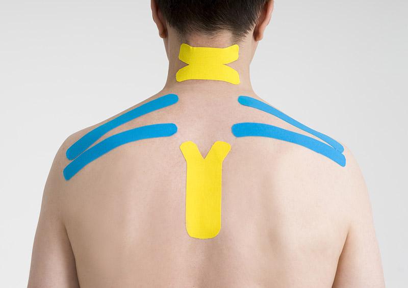 Taping des verspannten Schulter-/Nackenbereichs